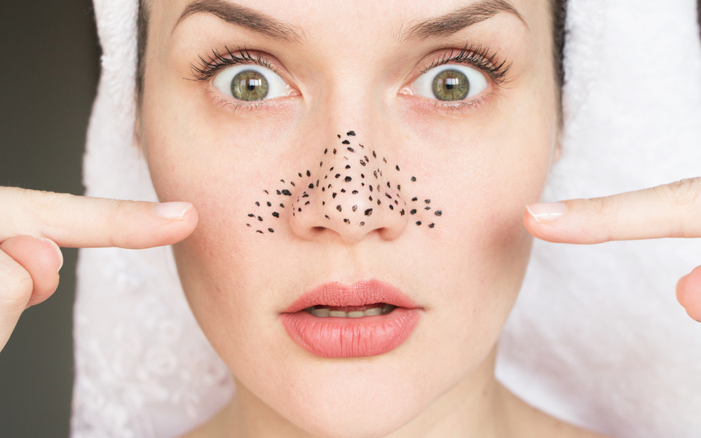 Home Remedies For Blackheads - Just Healthness Homeremediesforblackheads - Hair Beauty