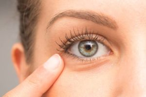 How To Treat Wrinkles Under The Eyes