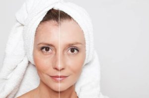 Skin Tightening Methods