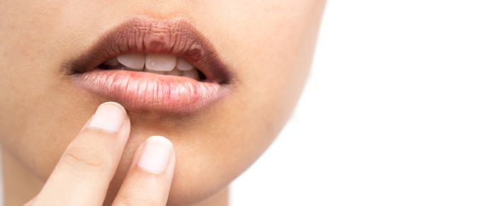 How To Get Rid Of Darkening Around The Mouth