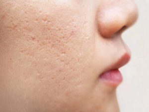 How To Get Rid Of Face Pits