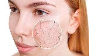 How To Take Care Of Dry Skin Using Easy Natural Home Recipes