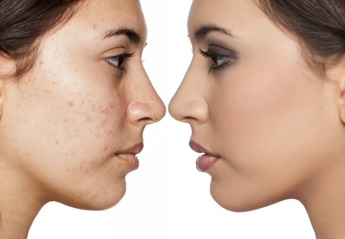 Natural Remedies To Remove Acne Traces And Dark Spots
