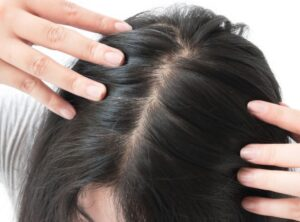 18 Recipes To Stimulate Hair Growth