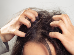 Treating Severe Itchy Scalp