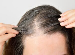 6 Home Recipes To Get Rid Of Gray Hair