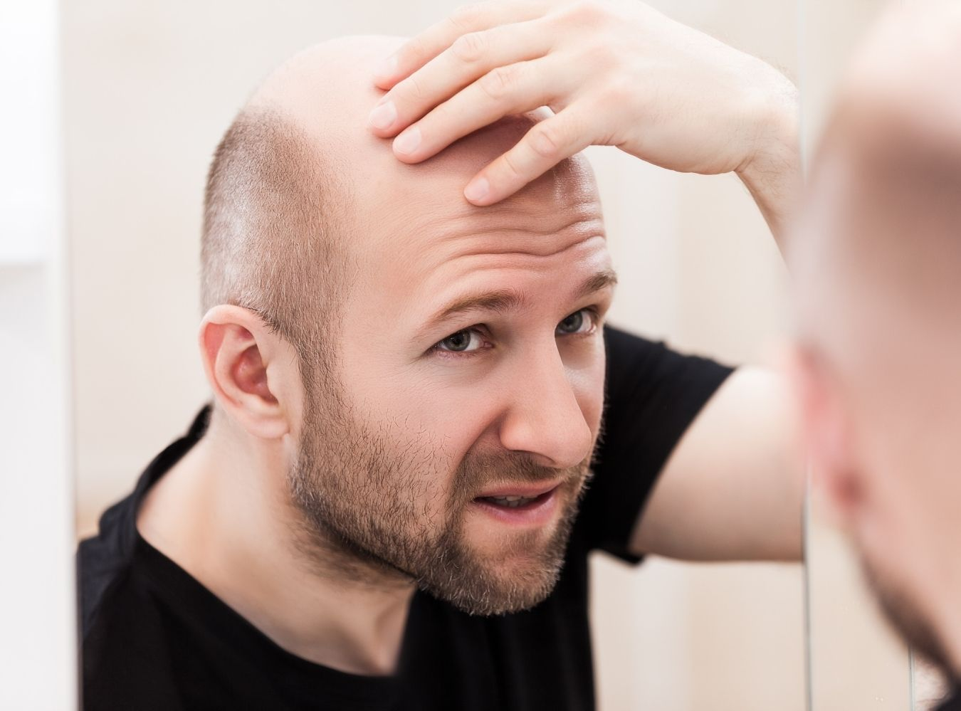 9 Methods To Treat Baldness And Hair Loss