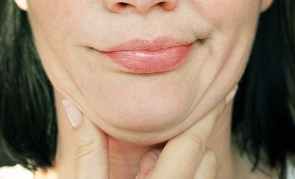 Double The Chin Problem And How To Get Rid Of It